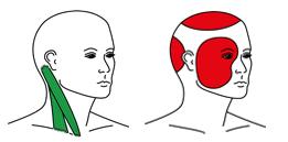 Triggerpunkt-Akupunktur_bei-Dr-Teuxen-Mengedoht_copyright-TRIAS